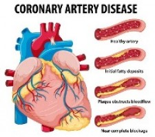 A Commentary on Concomitant Symptomatic Coronary Disease and Carotid Artery Stenosis -The Tufts Medical Center Experience