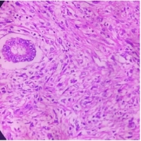 Adenosarcoma of Uterus with Sarcomatous Overgrowth and Rhabdomyoblastic Differentiation - A Rare Pathological Entity