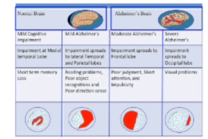 Alzheimer and It's Possible Therapy: A Review