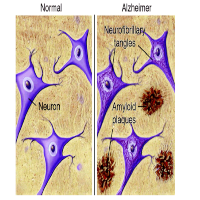 Alzheimers Disease: A Brief Review