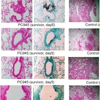 Antifungal Effects of PC945, a Novel Inhaled Triazole, on Candida albicans Pulmonary Infection in Immunocompromised Mice