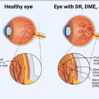 APE1/Ref-1 as a Novel Target for Retinal Diseases