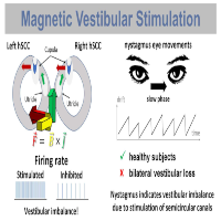 Comment On: Modulatory Effects of Magnetic Vestibular Stimulation on Resting-State Networks Can be Explained by Subject-Specific Orientation of Inner Ear Anatomy in the MR Static Magnetic Field