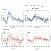 Commentary on Dysfunction of the Magnocellular Stream in Alzheimer Disease Evaluated by Pattern Electroretinograms and Visual Evoked Potentials.