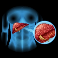 Fatty Liver and Hepatocellular Carcinoma