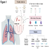 Lung-targeted SERCA2a Gene Therapy: From Discovery to Therapeutic Application in Bleomycin-Induced Pulmonary Fibrosis