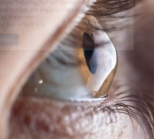 Mega-Dose Dietary Riboflavin in Treatment in Keratoconus, Post-Refractive Cornea Ectasia and Migraine. Has Its Time Arrived