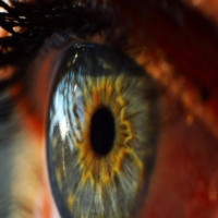 Naltrexone as a Novel Therapeutic for Diabetic Corneal Complications