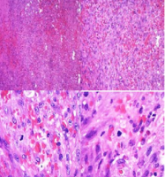 Primary Lymph Node Kaposi's Sarcoma in Two HIV Positive Patients Presenting with Generalized Lymphadenopathy and Pancytopenia in a Third Level Hospital in Guatemala