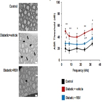 Resveratrol Treatment Reduces Neuromotor Impairment and Hearing Loss in a Mouse Model of Diabetic Neuropathy and Nerve Injury