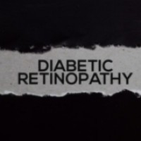 Risks and Prevalence of Diabetic Retinopathy in Children and Young People with Type 1 Diabetes Mellitus