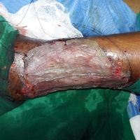 Role of Topical Insulin in Venous Ulcer Management