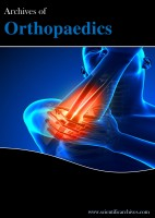 Archives of Orthopaedics