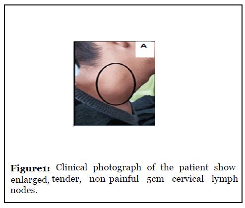 Nodes lymph herpes armpit Armpit lump: